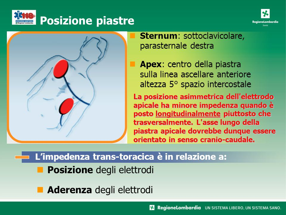 Posizione degli elettrodi Aderenza degli elettrodi
