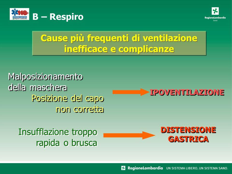 Cause più frequenti di ventilazione inefficace e complicanze