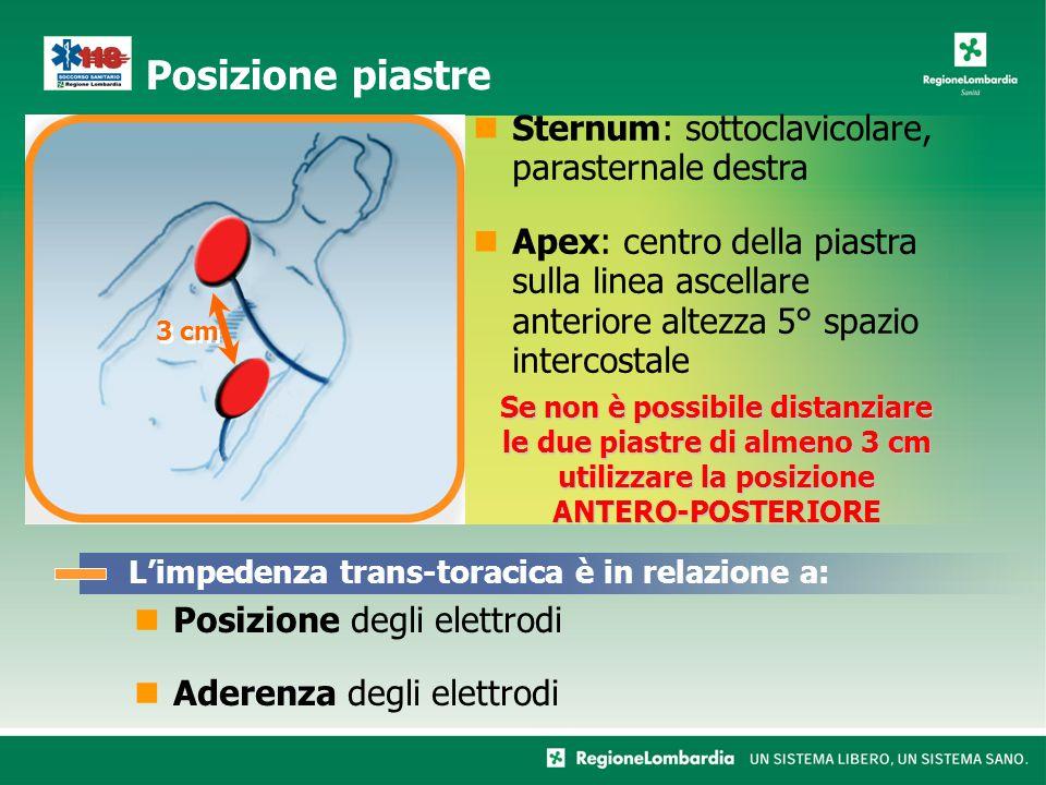 Sternum: sottoclavicolare, parasternale destra