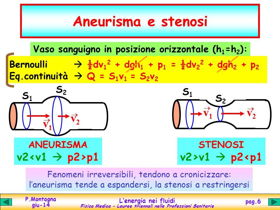Aneurisma e stenosi v1 v2 v1 v2 v2<v1  p2>p1