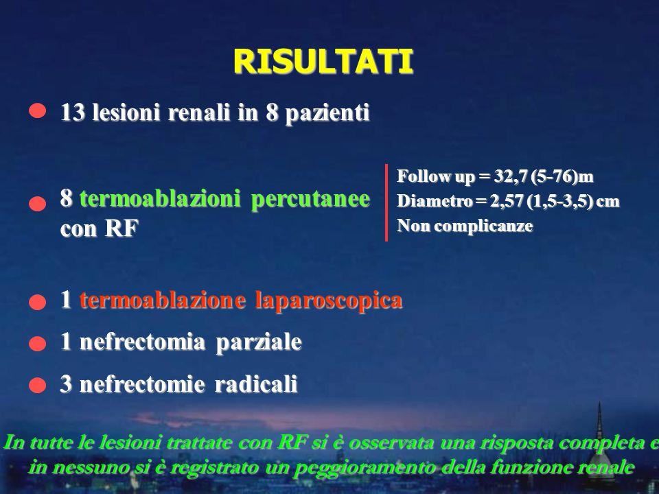 RISULTATI 13 lesioni renali in 8 pazienti 8 termoablazioni percutanee