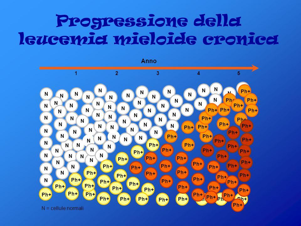 Progressione della leucemia mieloide cronica