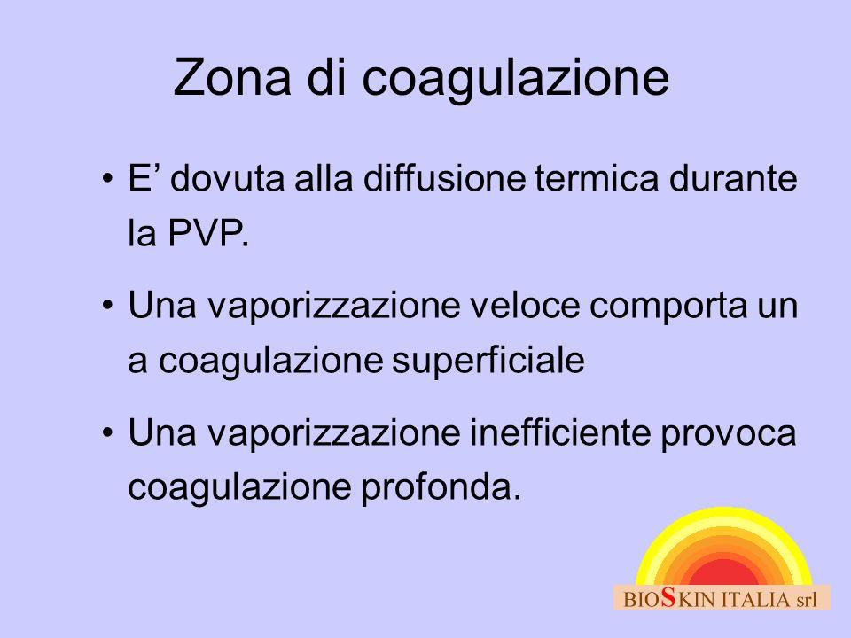 Zona di coagulazione E' dovuta alla diffusione termica durante la PVP.