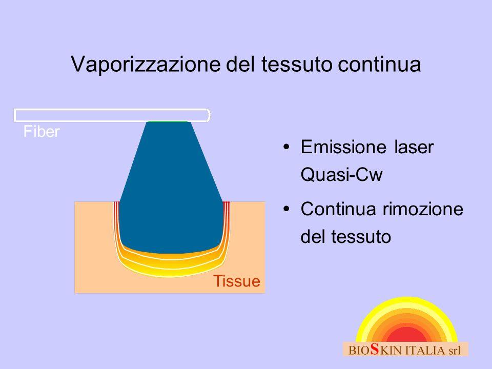Vaporizzazione del tessuto continua