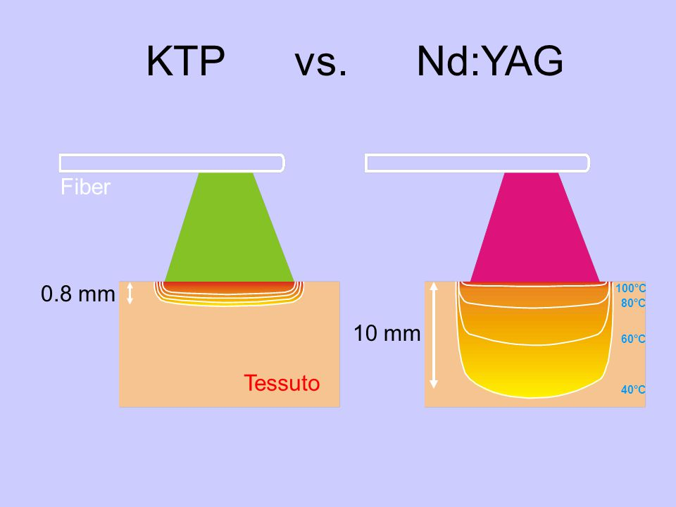 KTP vs. Nd:YAG Fiber 0.8 mm 10 mm Tessuto 100°C 80°C