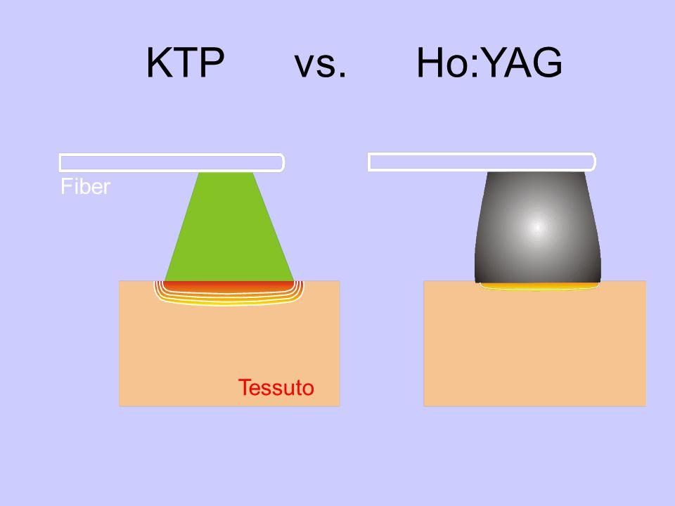 KTP vs. Ho:YAG Fiber Tessuto