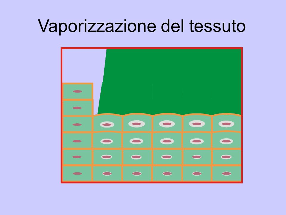 Vaporizzazione del tessuto