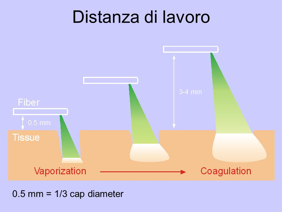 Distanza di lavoro 0.5 mm = 1/3 cap diameter