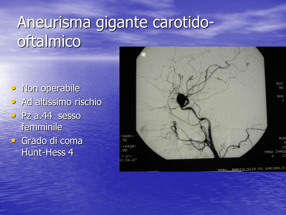 Aneurisma gigante carotido-oftalmico