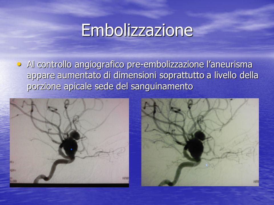 Embolizzazione