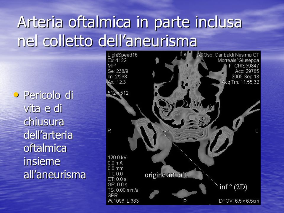 Arteria oftalmica in parte inclusa nel colletto dell'aneurisma