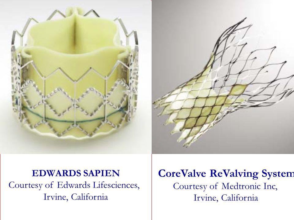 CoreValve ReValving System