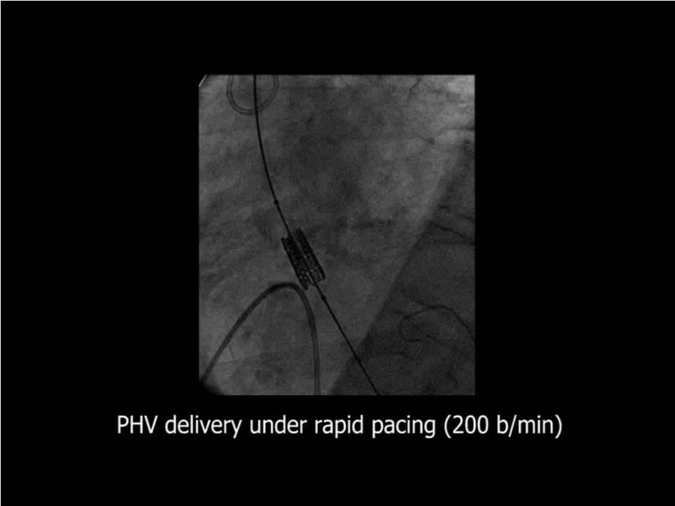 Il razionale della procedura è di minimizzare il trauma chirurgico, evitando sternotomia e l'utilizzo di circolazione extracorporea, impiantando la valvola a cuore battente.