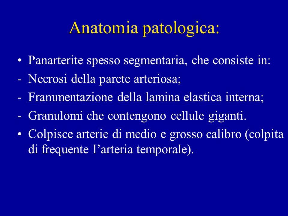 Anatomia patologica: Panarterite spesso segmentaria, che consiste in: