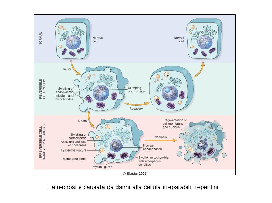 La necrosi è causata da danni alla cellula irreparabili, repentini