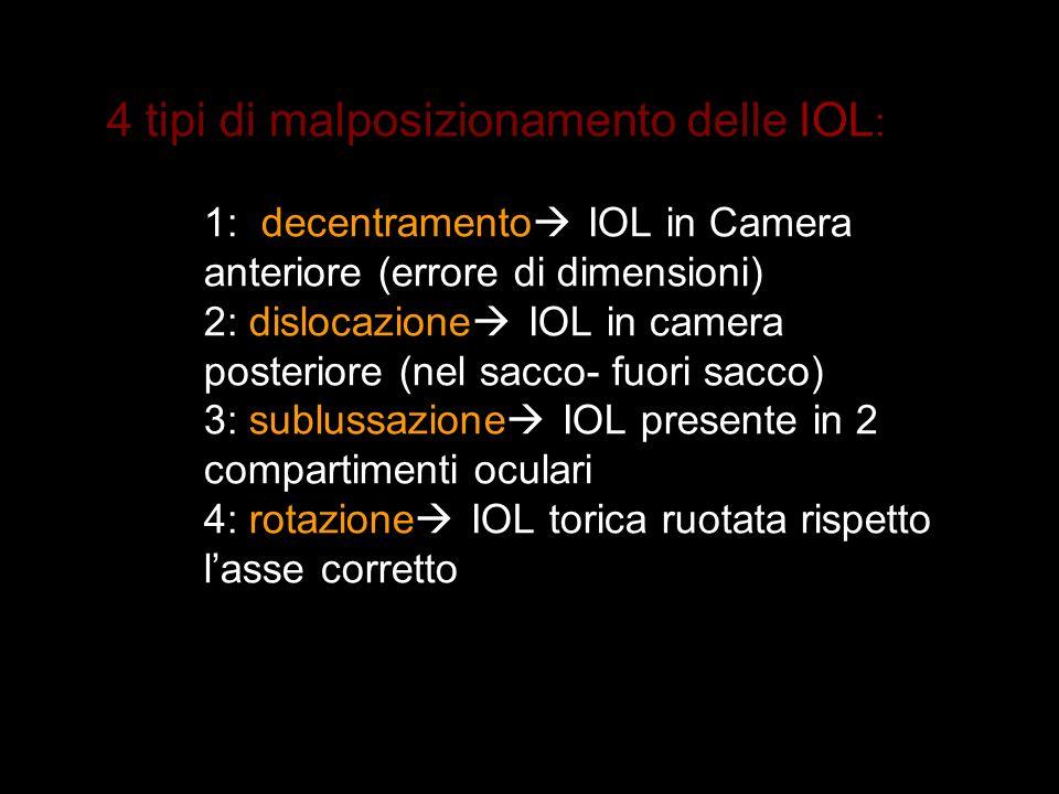 4 tipi di malposizionamento delle IOL: 1: decentramento IOL in Camera anteriore (errore di dimensioni) 2: dislocazione IOL in camera posteriore (nel sacco- fuori sacco) 3: sublussazione IOL presente in 2 compartimenti oculari 4: rotazione IOL torica ruotata rispetto l'asse corretto