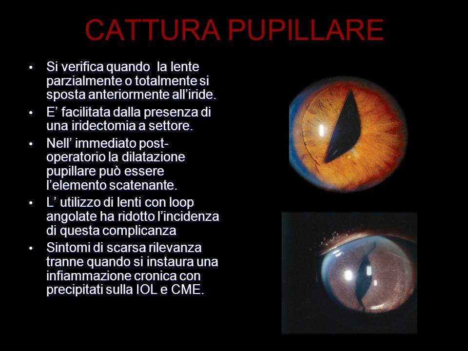 CATTURA PUPILLARE Si verifica quando la lente parzialmente o totalmente si sposta anteriormente all'iride.