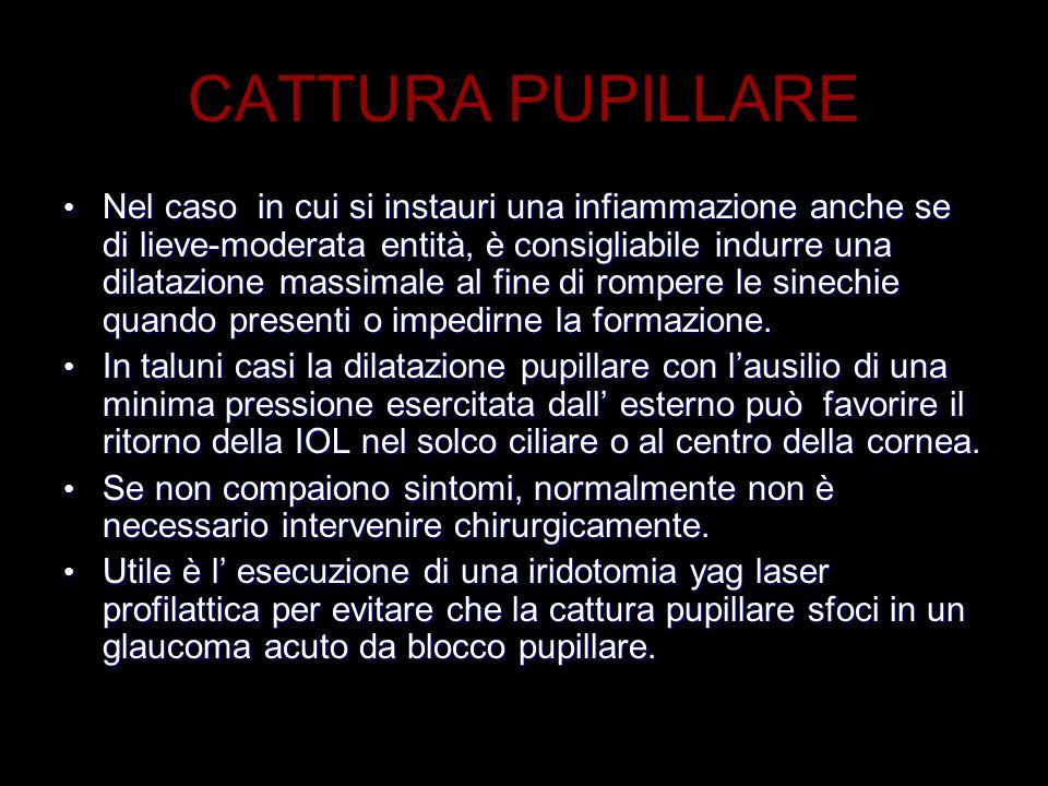 CATTURA PUPILLARE