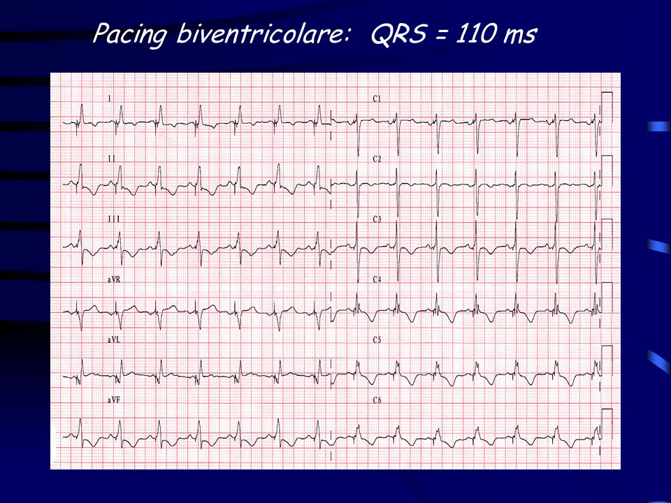 Pacing biventricolare: QRS = 110 ms