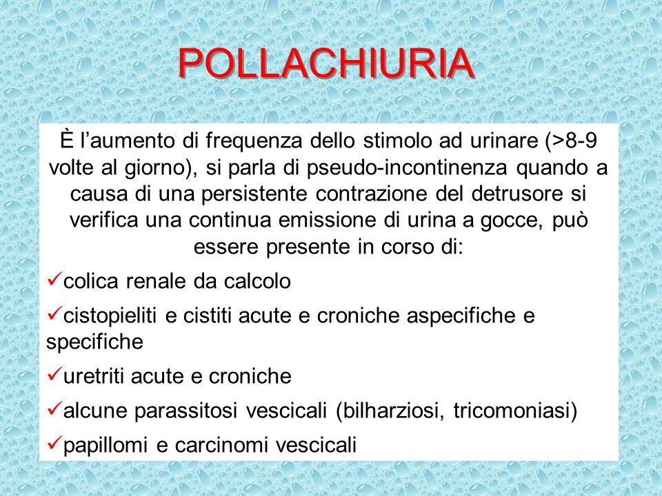 POLLACHIURIA