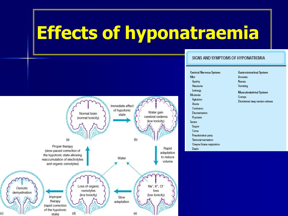 Effects of hyponatraemia