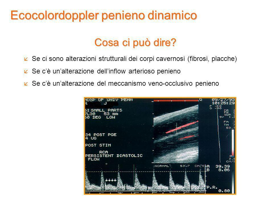 Ecocolordoppler penieno dinamico