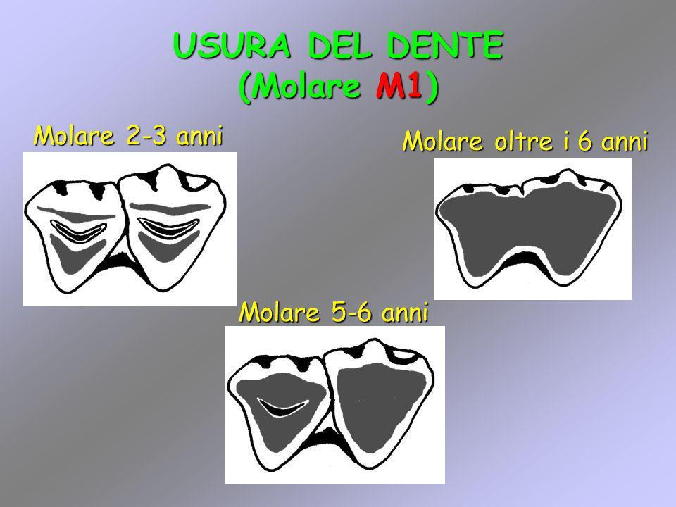 USURA DEL DENTE (Molare M1)