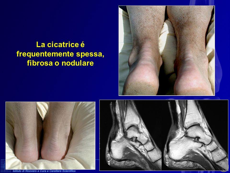 La cicatrice é frequentemente spessa, fibrosa o nodulare