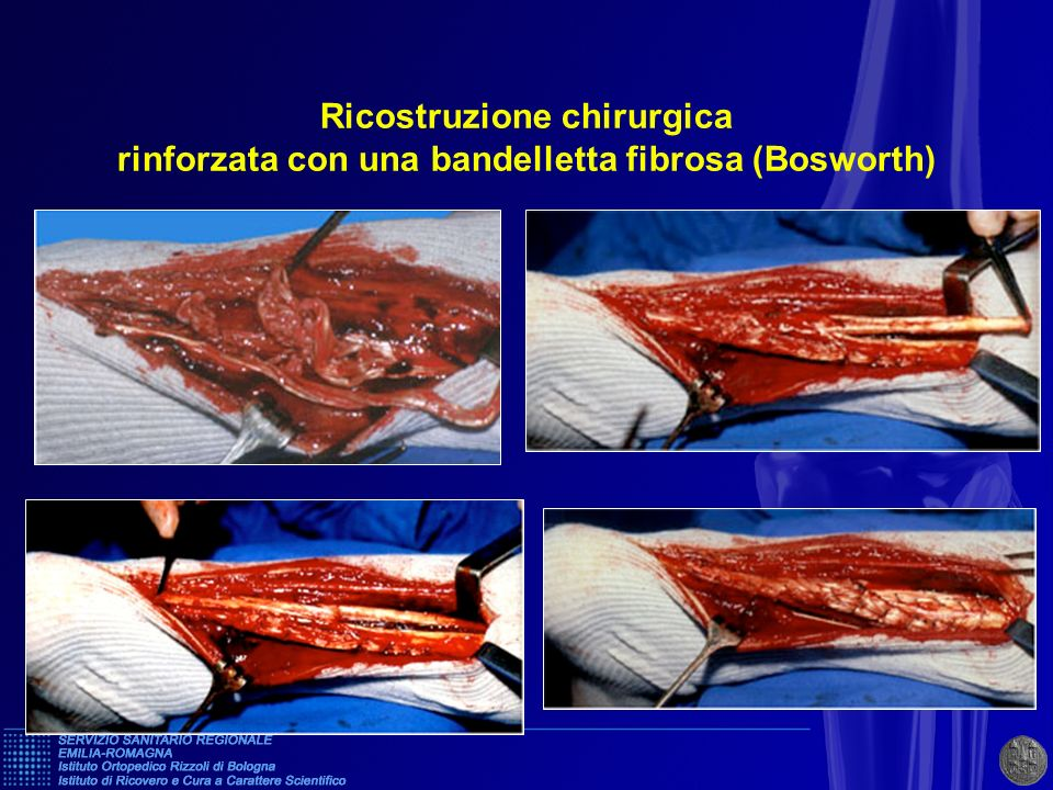 Ricostruzione chirurgica rinforzata con una bandelletta fibrosa (Bosworth)