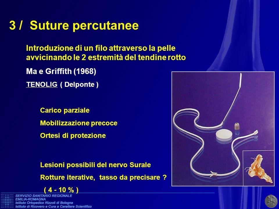 3 / Suture percutaneeIntroduzione di un filo attraverso la pelle avvicinando le 2 estremità del tendine rotto.