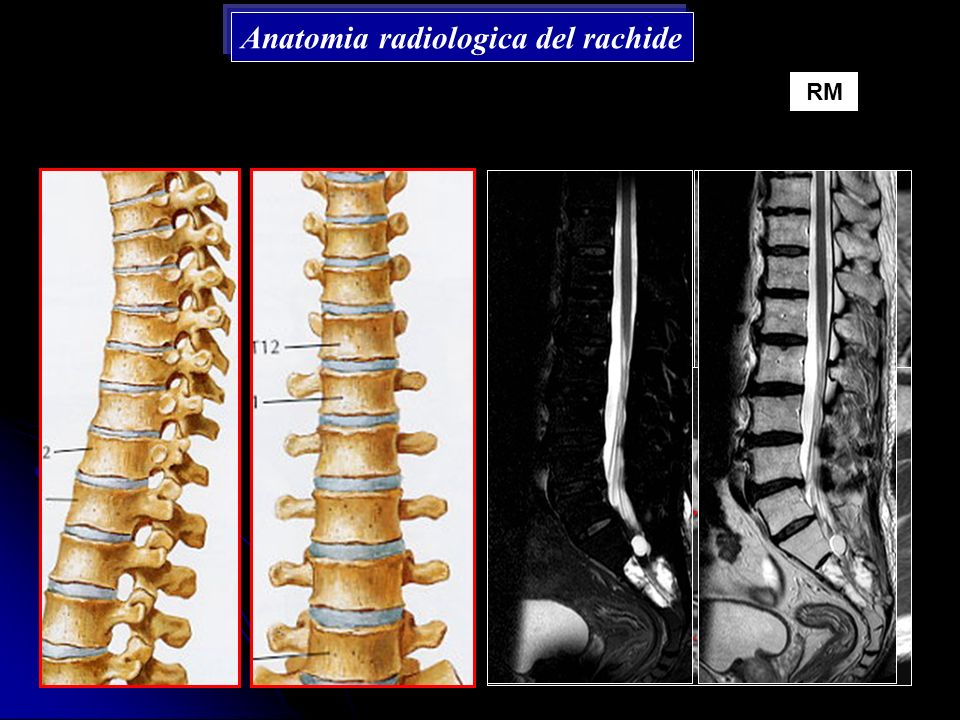 Anatomia radiologica del rachide
