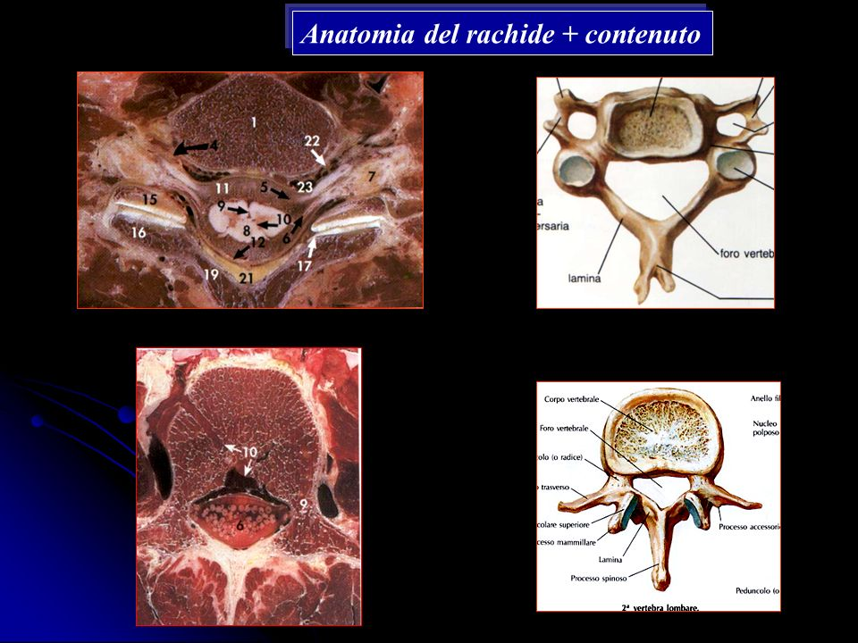 Anatomia del rachide + contenuto