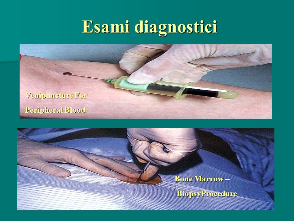 Esami diagnostici Venipuncture For Peripheral Blood Bone Marrow –