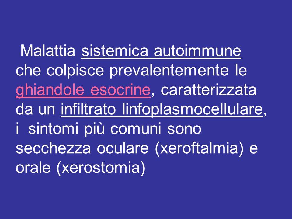 Malattia sistemica autoimmune che colpisce prevalentemente le ghiandole esocrine, caratterizzata da un infiltrato linfoplasmocellulare, i sintomi più comuni sono secchezza oculare (xeroftalmia) e orale (xerostomia)