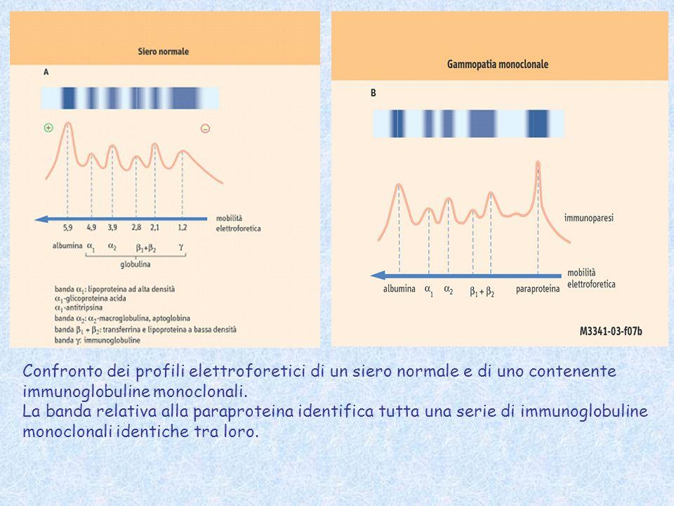 Confronto dei profili elettroforetici di un siero normale e di uno contenente