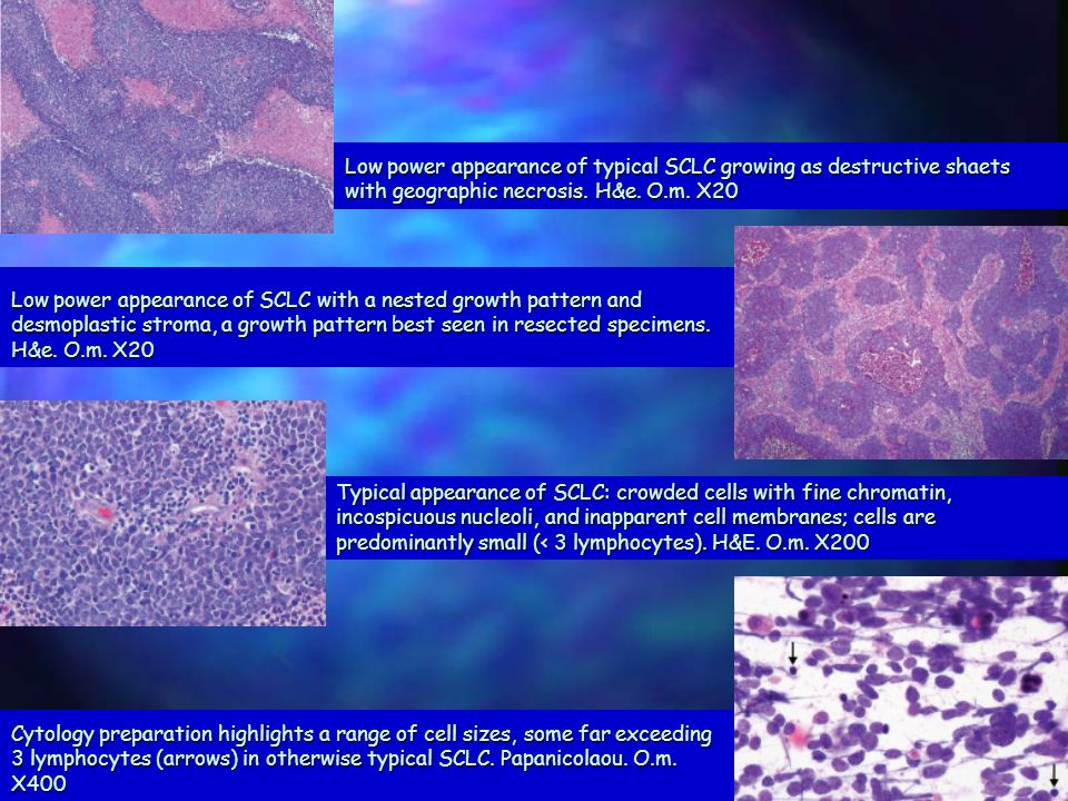 Low power appearance of typical SCLC growing as destructive shaets with geographic necrosis. H&e. O.m. X20