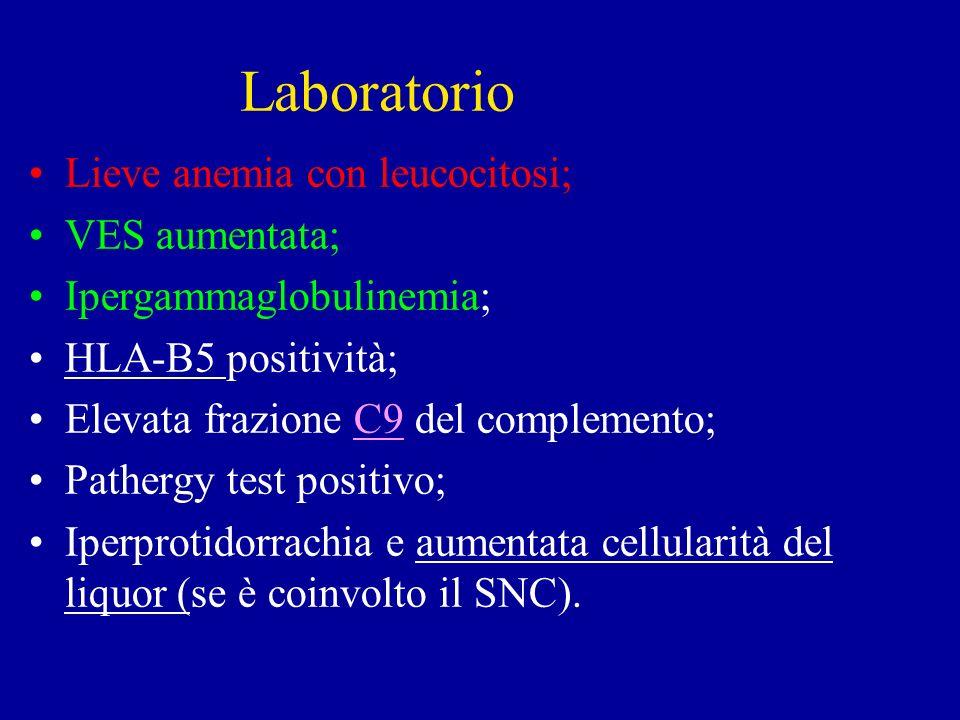 Laboratorio Lieve anemia con leucocitosi; VES aumentata;