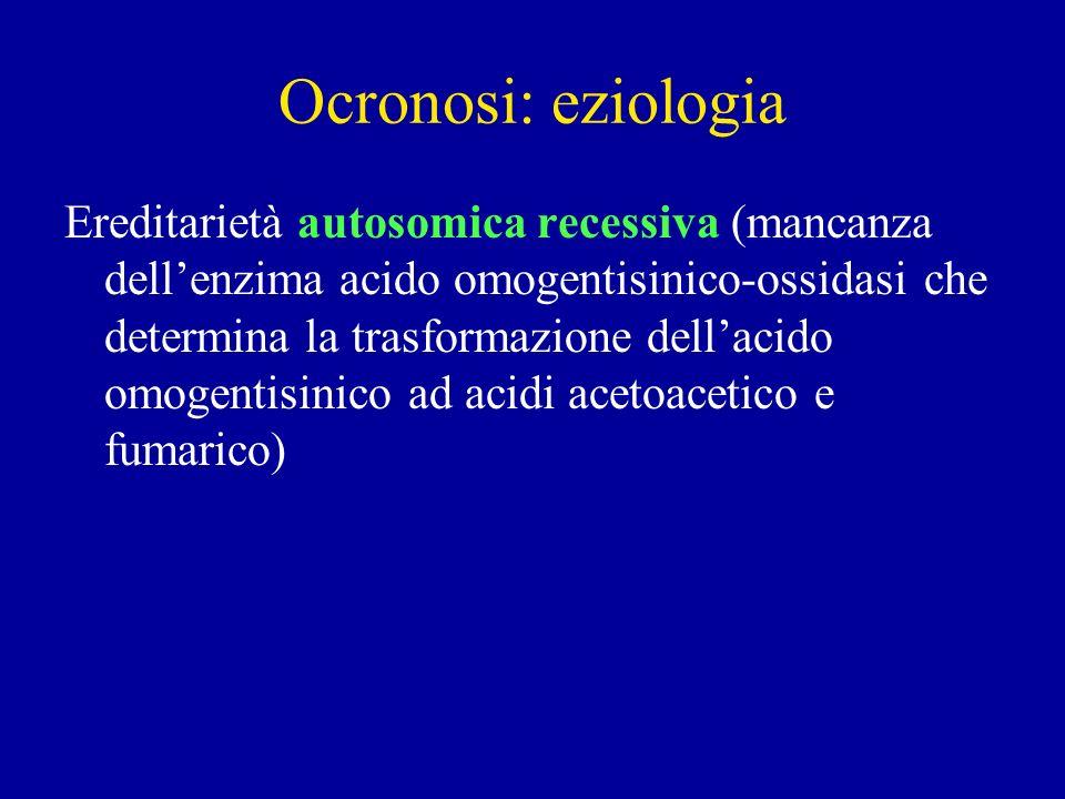 Ocronosi: eziologia