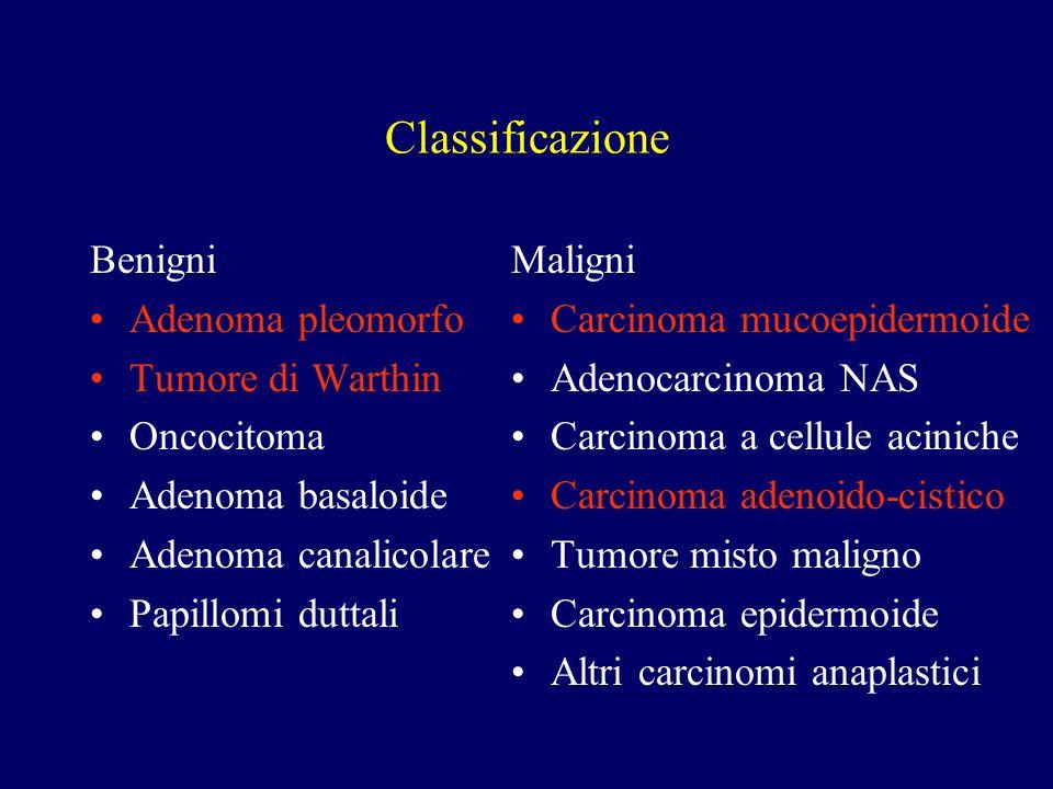 Classificazione Benigni Adenoma pleomorfo Tumore di Warthin Oncocitoma