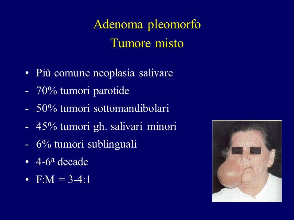 Adenoma pleomorfo Tumore misto