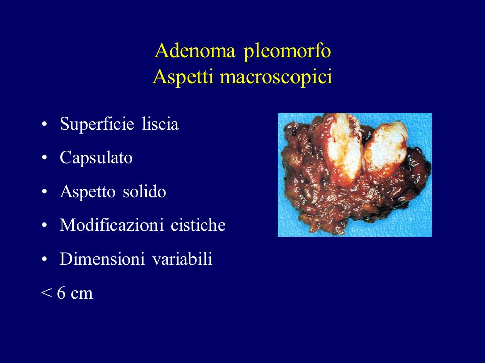 Adenoma pleomorfo Aspetti macroscopici