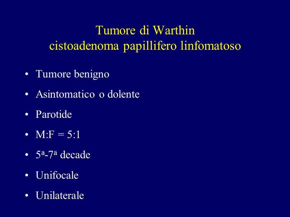 Tumore di Warthin cistoadenoma papillifero linfomatoso