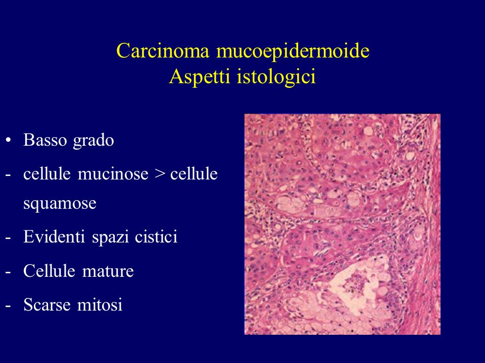 Carcinoma mucoepidermoide Aspetti istologici