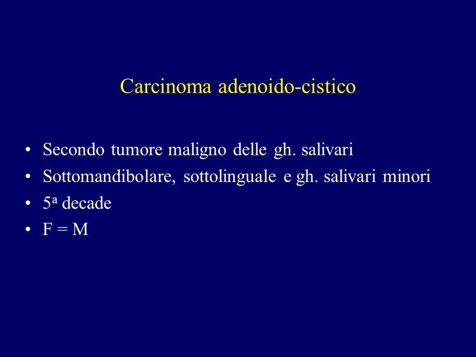 Carcinoma adenoido-cistico