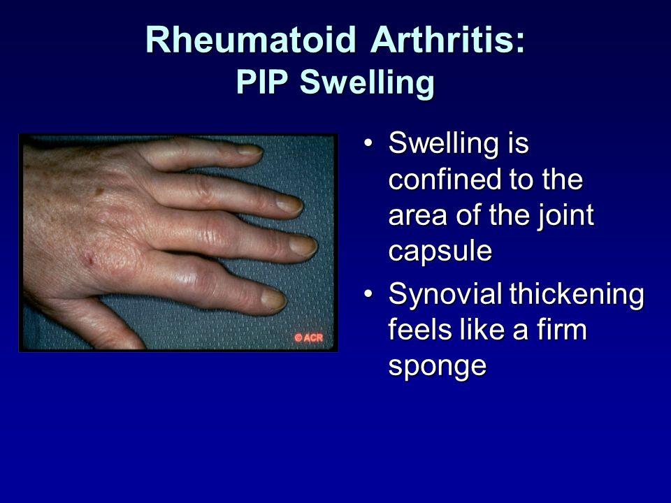 Rheumatoid Arthritis: PIP Swelling