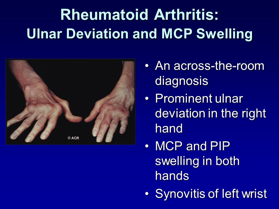 Rheumatoid Arthritis: Ulnar Deviation and MCP Swelling
