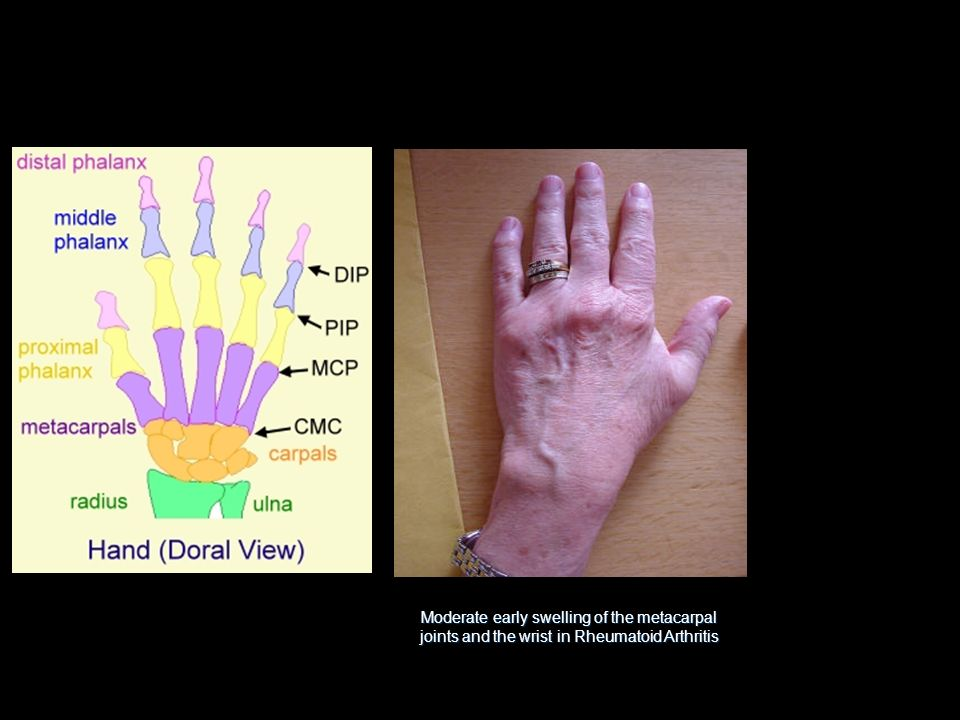 Moderate early swelling of the metacarpal joints and the wrist in Rheumatoid Arthritis