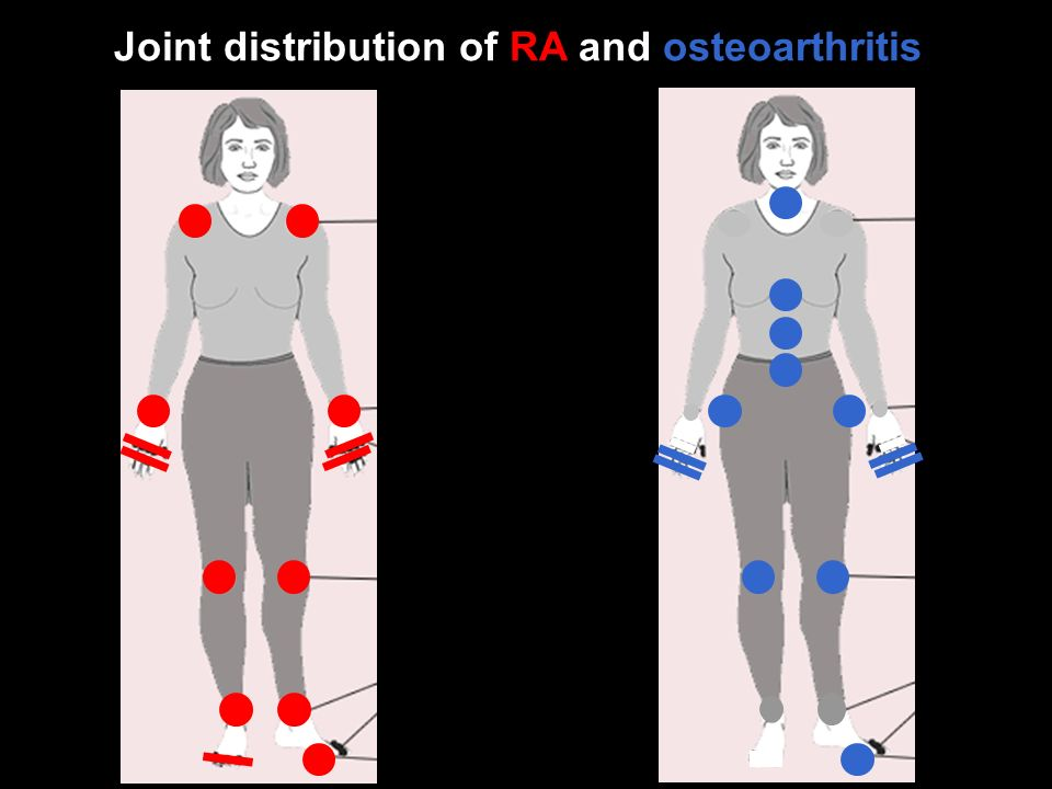 Joint distribution of RA and osteoarthritis