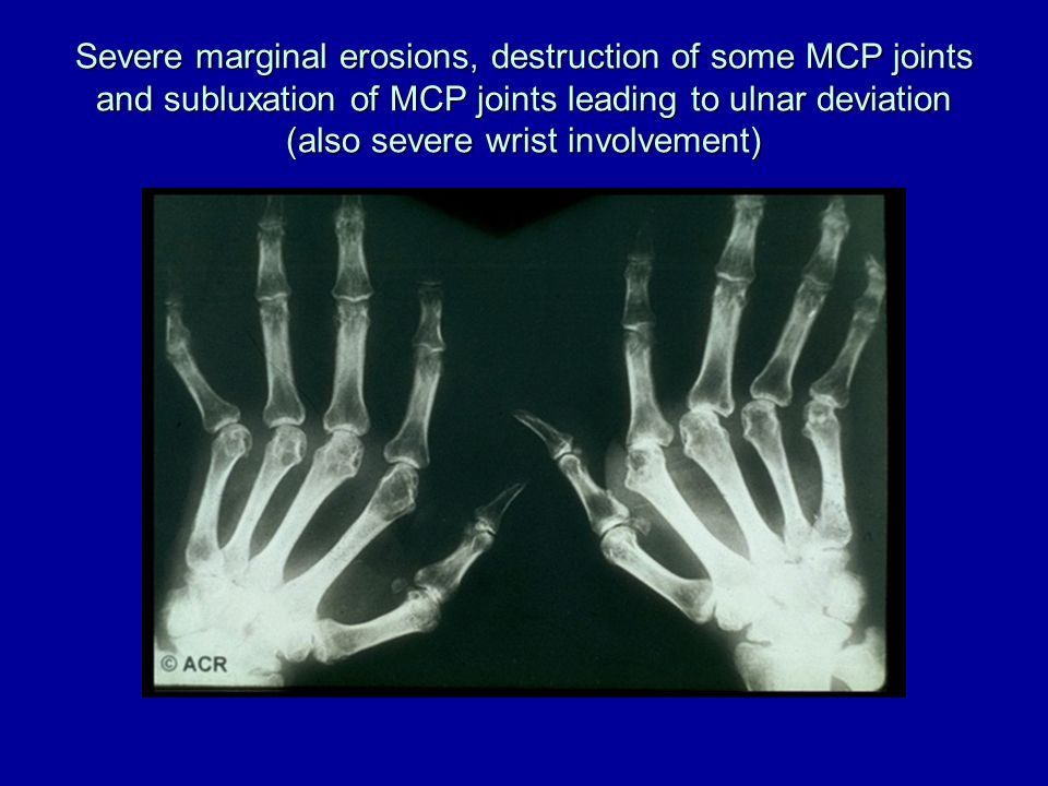 Severe marginal erosions, destruction of some MCP joints and subluxation of MCP joints leading to ulnar deviation (also severe wrist involvement)