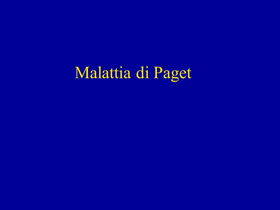 Malattia di Paget